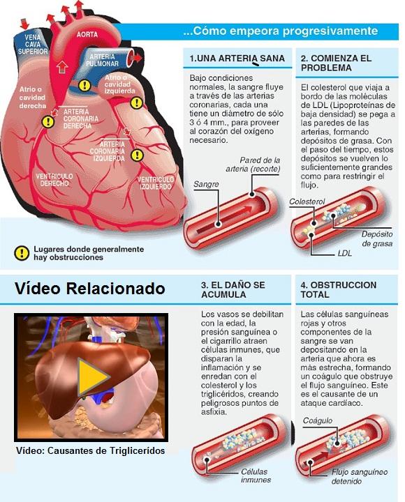 Controlando los triglic ridos masmusculo strongsite ponte en forma - Trigliceridos alimentos ...